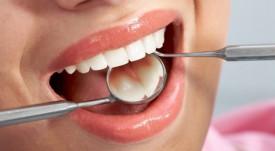 Гигиены полости рта после имплантации зубов