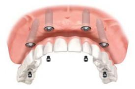 Нелегкий выбор в имплантации зубов