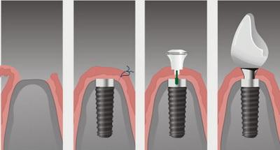 Осложнения после имплантации зубов