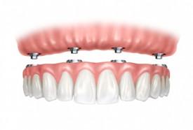 Мини имплантация зубов