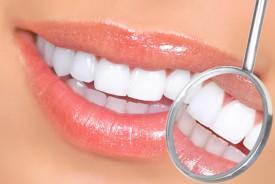 Как наращивают зубы?
