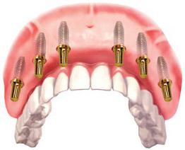 Мостовидный несъемный протез на имплантах