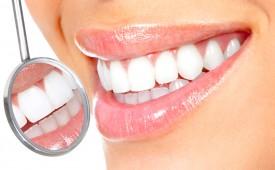 Лазерное или домашнее отбеливание зубов?