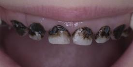 Покрытие серебром молочных зубов