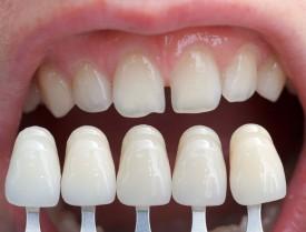 Виниры из керамики на зубы