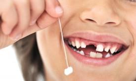 Причины выпадения зубов