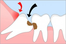 Основные рекомендации после удаления зубов мудрости