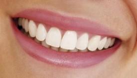 Самые популярные проблемы с зубами