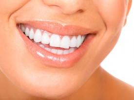 Почему мои зубы стали темными?